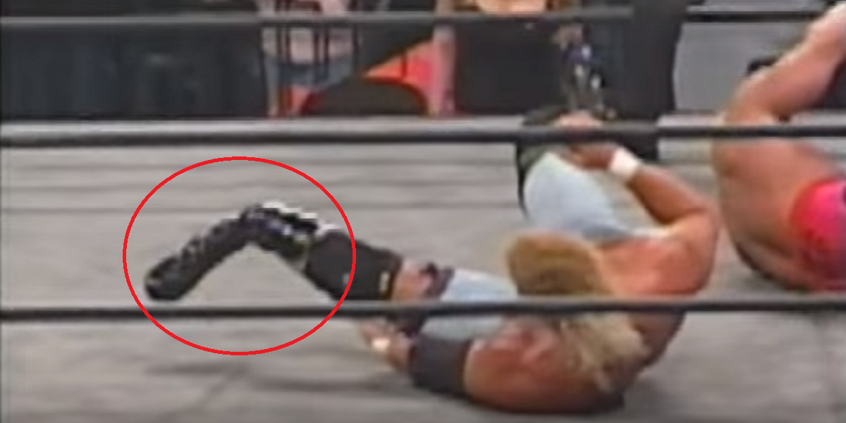 Top 15 Real Wrestling Injuries That Were Hard To Watch